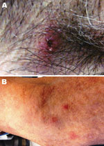 Thumbnail of Images of lesion in the patient caused by bite from lone star tick. A) Erythematous circular lesion in right armpit at site of tick bite with induration and a necrotic center. B) Maculopapular rash involving the inferior portion of the arm. Source: Julie M. Bradley.