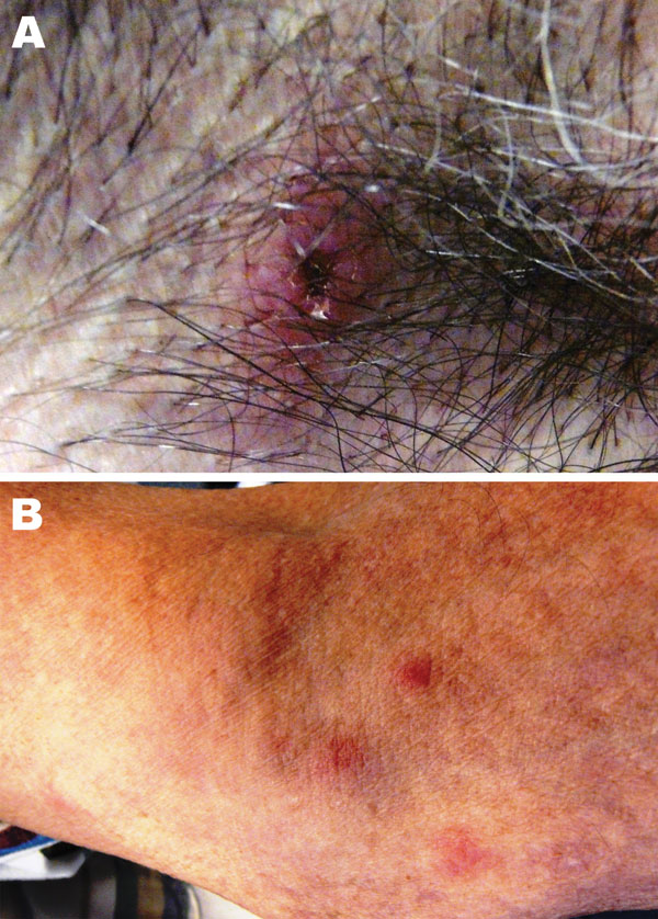 Images of lesion in the patient caused by bite from lone star tick. A) Erythematous circular lesion in right armpit at site of tick bite with induration and a necrotic center. B) Maculopapular rash involving the inferior portion of the arm. Source: Julie M. Bradley.
