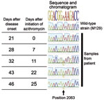 Thumbnail of Time elapsed and chromatogram of wild-type Mycoplasma pneumonia strain M129 (ATCC 29342) compared with results from 5 samples from a 6-year-old boy in Israel. The A2063G mutation is shown to be evolving during treatment and predominates at the end.