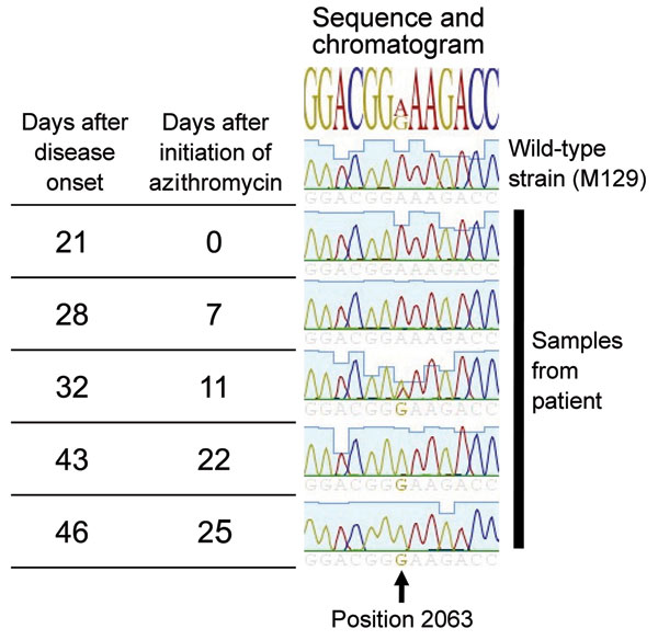 Time elapsed and chromatogram of wild-type Mycoplasma pneumonia strain M129 (ATCC 29342) compared with results from 5 samples from a 6-year-old boy in Israel. The A2063G mutation is shown to be evolving during treatment and predominates at the end.