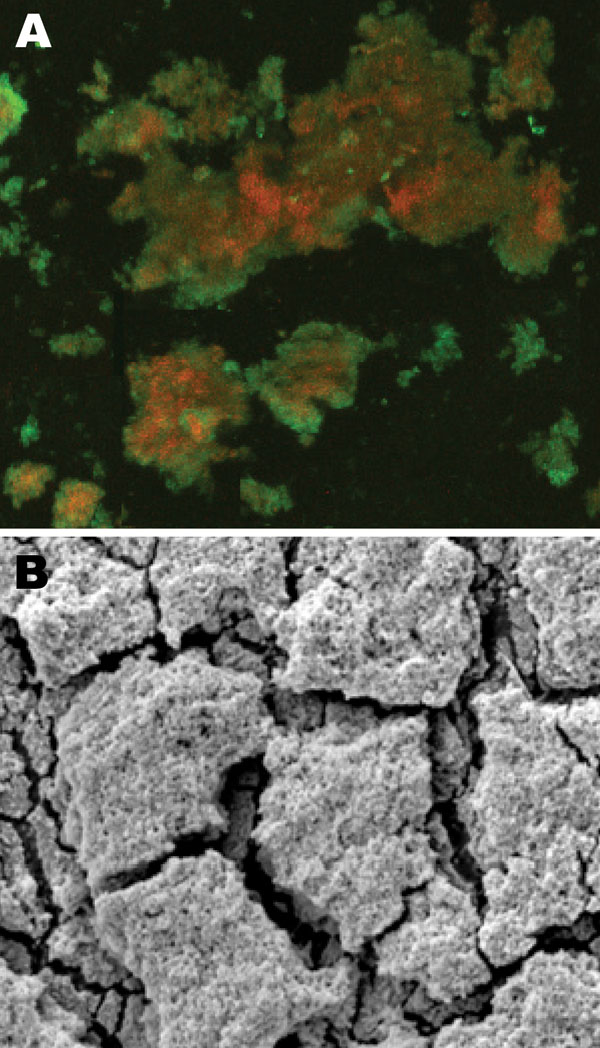 A) Confocal scanning laser microscopy image of central venous catheter tip in a patient with Nocardia nova complex central line–associated bloodstream infection. Bright green objects are viable biofilm bacteria, and orange-red objects are dead bacteria. Original magnification ×25. B) Scanning electron microscopy image of central venous catheter tip reveals biofilm surface structure. Original magnification ×5,000.