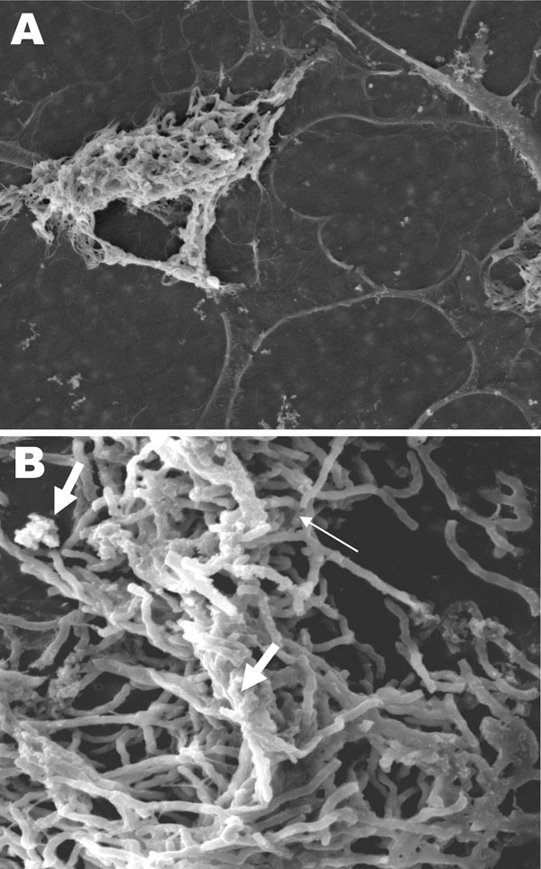 Scanning electron microscopy of Nocardia spp. biofilm on silicone central venous catheters. A) N. nova complex (disseminated Nocardia bacteremia) on the surface, showing heavy biofilm matrix covering filamentous cells. B) N. nova complex (definite central line–associated bloodstream infection) showing network of filamentous (thin arrow), partially covered with opaque biofilm matrix (thick arrows). Original magnifications ×2,500.