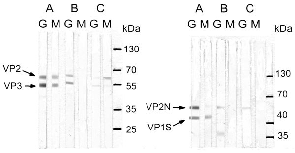 Immunoglobulin (Ig) G and IgM immunoblots of 3 mothers for infection with parvovirus 4 (PARV4) (left) or parvovirus B19 (B19V) (right). Case-patient A was co-infected with PARV4 and B19V; case-patient B was the only mother who did not have IgM against PARV4; case-patient E had weak IgM against PARV4 viral protein (VP) 3 and IgM against B19V VP2N, which could not be seen after scanning. Molecular weights are ≈60 kDa for PARV4 VP2, 51 kDa for PARV4 VP3, 51 kDa for B19V VP2N, and 41 kDa for B19V VP