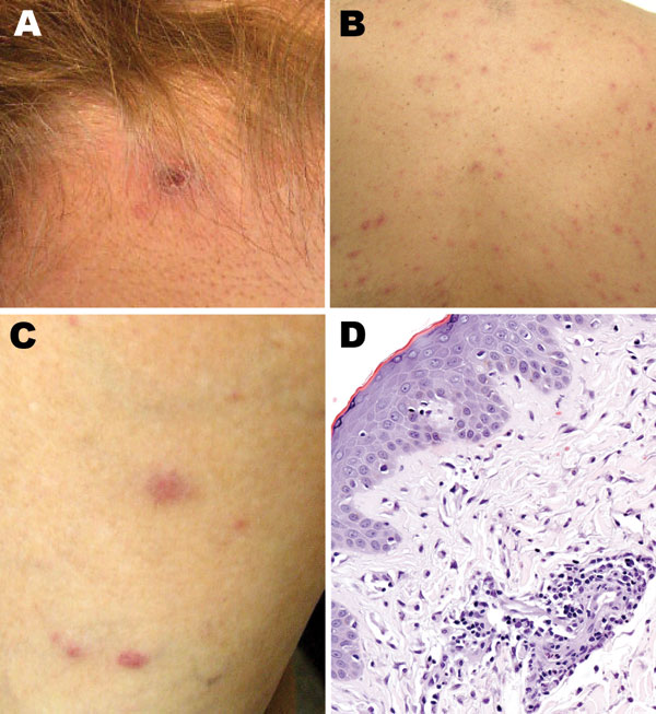 Cutaneous lesions of patients with suspected and confirmed Rickettsia parkeri rickettsiosis in Argentina. A) Eschar at the nape of the neck at the site of recent tick bite. B, C) Papulovesicular rash involving the back and lower extremities. D) Histopathologic appearance of a papule biopsy specimen, showing perivascular mononuclear inflammatory cell infiltrates and edema of the adjacent superficial dermis and an intact epidermis (hematoxylin and eosin stain; original magnification ×100).