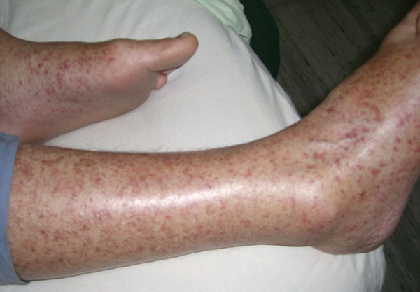 Rash exhibited by patient infected with Rickettsia honei, Nepal, 2009.