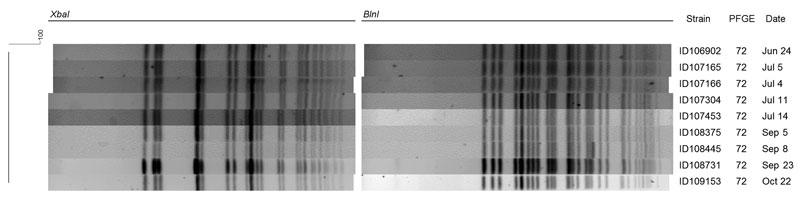 Digestion pattern of ciprofloxacin-resistant Shigella sonnei isolated from 9 patients for XbaI and BlnI, Montréal, Québec, Canada, June–October 2010. PFGE, pulsed-field gel electrophoresis.