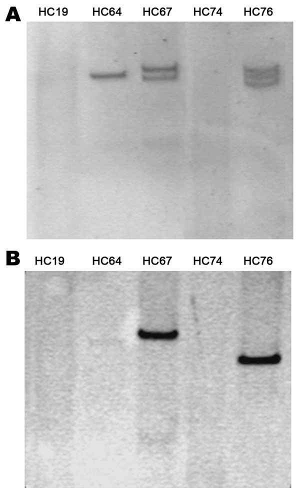 Plasmidic profile of the enteroaggregative Escherichia coli strains (A) and Southern blotting of the blaCTX-M-15 gene (B).