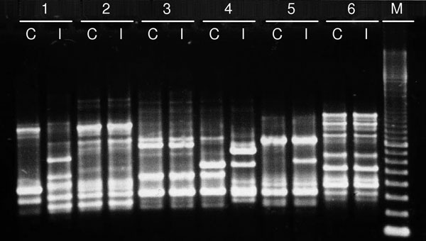 Enterobacterial repetitive intergenic consensus sequence type 2 PCR patterns of pairs of Escherichia coli isolates from 6 patients examined during study of extended-spectrum β-lactamase–producing Enterobacteriaceae infection among liver transplant recipients, France, January 2001–April 2010. The pretransplant colonizing isolate (C) and the posttransplant infecting isolate (I) show identical patterns for patients 2, 3, and 6 and different patterns for patients 1, 4, and 5. M, molecular mass stand