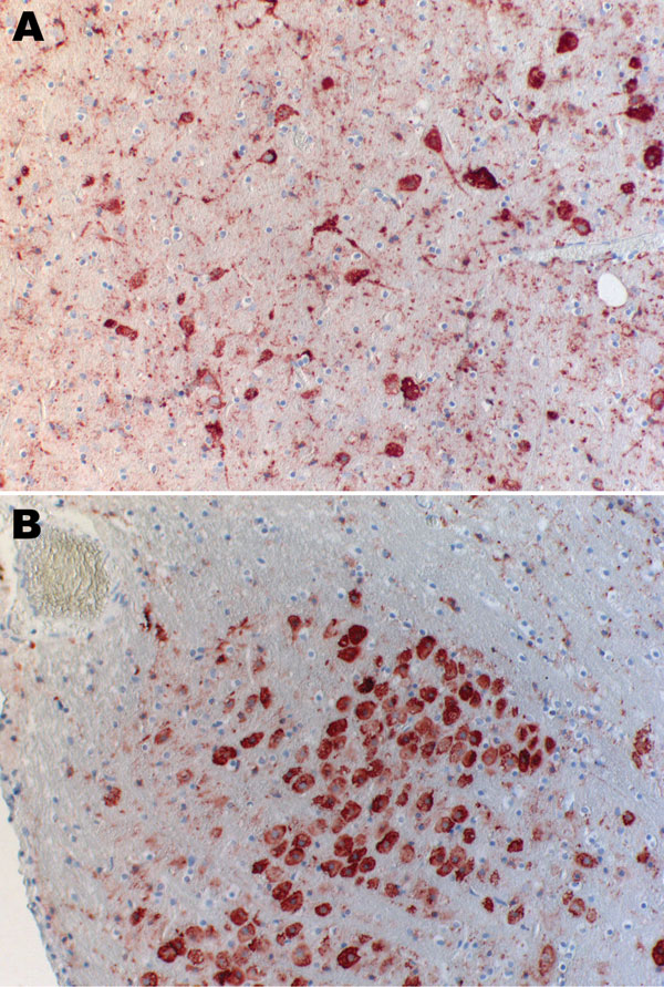 Immunohistochemical analysis of brain of Natterer's bat for lyssavirus antigen by using the avidin biotin complex method. A) Cerebrum showing a large number of neurons. Cytoplasmic granular-to-diffuse staining for rabies antigen is visible in the perikarya and neuronal processus. B) Medulla and neurons of the nucleus funiculi lateralis showing strong cytoplasmic staining for rabies antigen. Original magnifications ×20.
