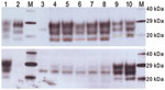 Thumbnail of Western blot analysis of a range of murine transmissible spongiform encephalopathy–affected brain homogenates in host-encoded prion protein (PrP)–a (RIII) mice. A) Western blot probed with SHA31, 15-s exposure time. B) Western blot probed with 12B2, 5-min exposure time. M, biotinylated marker; lane 1, ovine scrapie field case; lane 2, bovine spongiform encephalopathy (BSE) field case; lane 3, unchallenged mouse; lane 4, bovine BSE-challenged mouse; lane 5, ovine BSE-challenged mouse