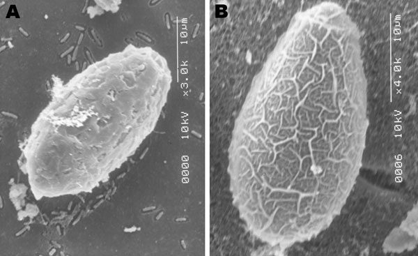 Scanning electron microscopy images of A) an egg of the Ecuadorian Amphimerus spp. trematode (original magnification ×3) obtained from a human and B) an egg of the Asian Clonorchis sinensis trematode (original magnification ×4). Although the size is similar, the pattern of the surface is different, thus differentiating the 2 genera.