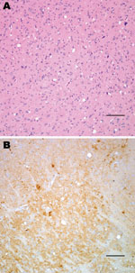 Thumbnail of Histopathologic analysis of transgenic mouse expressing bovine prion protein (PrP) gene inoculated with bovine spongiform encephalopathy agent. Spongiform degeneration in the thalamus (A), adjacent section showing PrP immunopositivity (B). Panel A was stained with hematoxylin and eosin, panel B was immunostained with PrP antibody 6D11. Scale bars = 100 μm.