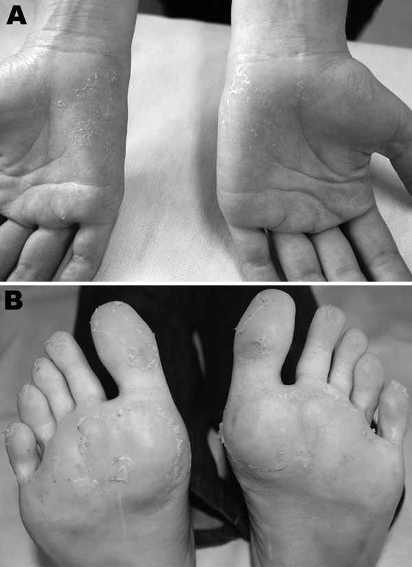 Clinical features exhibited by patient with chikungunya, Brazil 2010. A) Desquamation of palms after maculopapular rash, 33 days after symptom onset. B) Desquamation of soles after maculopapular rash, 33 days after symptom onset.