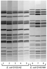 Thumbnail of XbaI pulsed-field gel electrophoresis patterns of pathogenic Escherichia coli from humans and venison, Minnesota, USA, November 2010. Lanes 2, 4, 6, and 8, isolates from venison. Lanes 1, 3, 5, and 7, isolates from human case-patients.