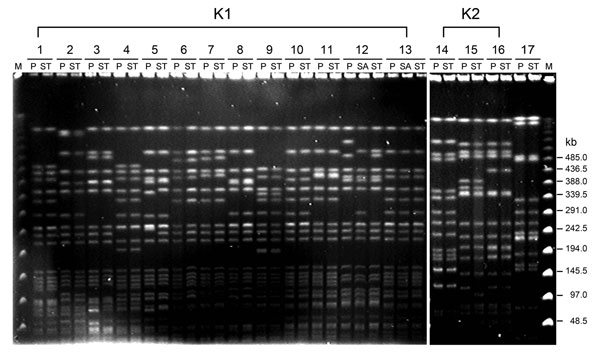 Pulsed-field gel electrophoresis of randomly selected isolates of Klebsiella pneumoniae from 17 patients with liver abscess, Taiwan, January 2009–December 2010. DNA fragments were subjected to electrophoresis after digestion with XbaI. Lanes 1–13, serotype K1 isolates; lanes 14–16, serotype K2 isolates; lane 17, serotype non-K1/K2 isolates. M, molecular mass marker; P, liver aspirate; ST, stool; SA, saliva.