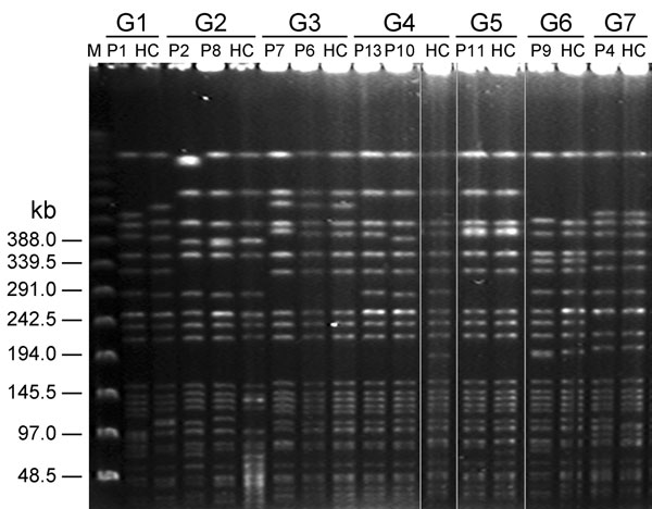 Pulsed-field gel electrophoresis of Klebsiella pneumoniae isolates from fecal samples of 7 patient groups with liver abscess and healthy carriers, Taiwan, January 2009–December 2010. G, patient group; M, molecular mass marker; P, patient; HC, healthy carrier.