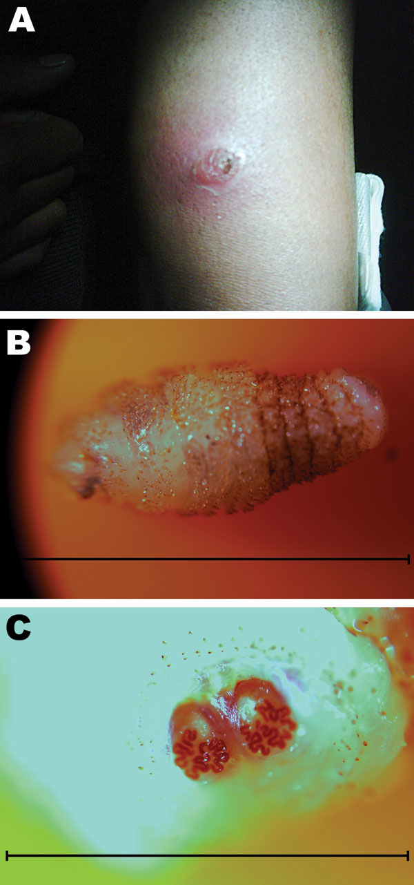 A) Lateral aspect of the upper arm of a 26-year-old woman showing cutaneous myiasis and an erythematous lesion 2.5 cm in diameter, Canada. B) Cordylobia rodhaini larva (length ≈1 cm) isolated from the erythematous lesion. Scale bar = 10 mm. C) Characteristic posterior spiracles of a C. rodhaini larva. Scale bar = 3 mm.