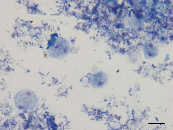Dientamoeba fragilis trophozoites in a smear of pig feces after Giemsa staining, Italy, 2010–2011. Scale bar = 10 μm.