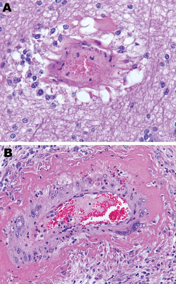 Brain vasculitis in horse experimentally infected with Hendra virus, Australia. A) Parenchyma and B) ovary of horse 2. Original magnification ×200.