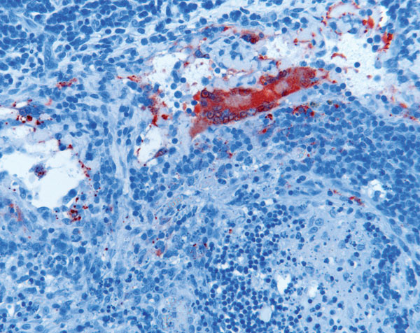 Lymphadenitis with syncytial cell formation in horse 2 experimentally infected with Hendra virus (HeV), Australia. Immunohistochemical staining of HeV N protein showing presence of antigen in red. Original magnification ×200.