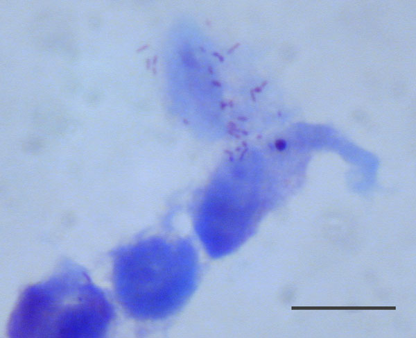 Rickettsia sp. AvBat in XTC-2 cell culture with Gimenez staining. Scale bar = 20 μm.
