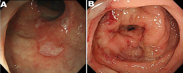 Endoscopic features of amebic colitis, Japan, 2003–2009. A) Colonoscopy showing ulcers in the rectum. B) Colonoscopy showing multiple erosions with exudates surrounded by edematous mucosa in the sigmoid colon.