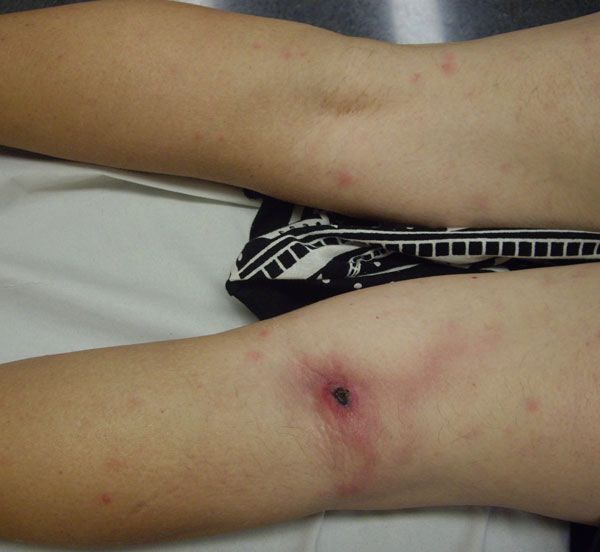 Inoculation eschar on popliteal area and discrete maculopapular elements in patient with lymphangitis infected with Rickettsia sibirica mongolitimonae, Spain, 2011.