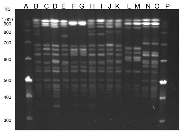 Pulsed-field gel electrophoresis of SmaI-digested Enterococcus faecalis isolated from humans with urinary tract infections and from poultry in the same houselhold, Vietnam, January 2008–January 2010. Lanes A and P are molecular weight markers. Lane B, isolate 90U; lane C, isolate 90P; lane D, 122U; lane E, 122P; lane F, 186U; lane G, 186P; lane H, 191U; lane I, 191P; lane J, 204U; lane K, 204P; lane L, 217U; lane M, 217P; lane N, 221U; and lane O, 221P.