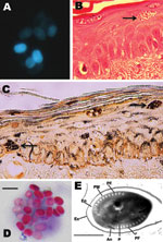 Thumbnail of Microsporidium detected in clinical specimens from a stem cell transplant patient who had undergone substantial immunosuppression. A) Calcofluor white–stained ascitic fluid (original magnification ×500). B) Hematoxylin and eosin–stained skin biopsy sample (original magnification ×400). The arrow indicates clusters of spores. C) Warthin-Starry–stained skin biopsy sample (original magnification ×400). The arrows indicate clusters of spores. D) Modified trichrome–stained material from