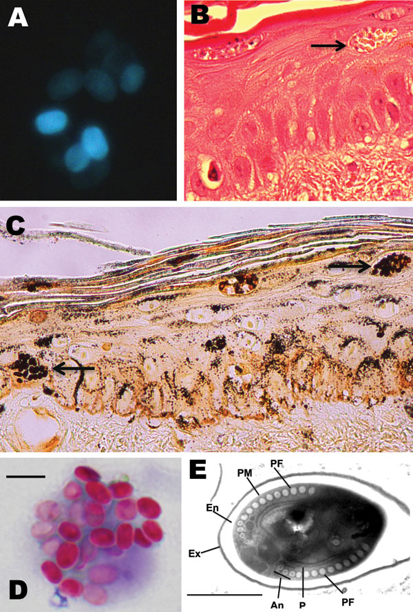 Microsporidium detected in clinical specimens from a stem cell transplant patient who had undergone substantial immunosuppression. A) Calcofluor white–stained ascitic fluid (original magnification ×500). B) Hematoxylin and eosin–stained skin biopsy sample (original magnification ×400). The arrow indicates clusters of spores. C) Warthin-Starry–stained skin biopsy sample (original magnification ×400). The arrows indicate clusters of spores. D) Modified trichrome–stained material from bronchoalveol