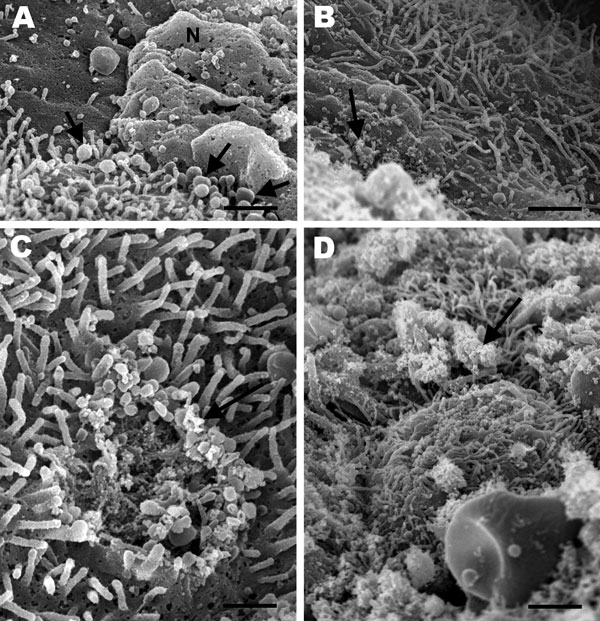 Scanning electron micrographs of the lung from a 2-year-old ferret that died of acute dyspnea, showing A) marked loss of cilia with multifocal degenerative changes characterized by bulbous swelling of cilia (arrows) and necrosis of bronchial epithelial cells (N) (scale bar = 1 µm); B) marked loss of cilia and numerous pleomorphic mycoplasma-like organisms diffusely attached to the mucosal surface (arrow) (scale bar = 1.25 µm); C) focal area of cilia loss and cell membrane damage with mycoplasma-