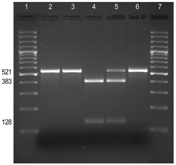 Screening for the A2047G mutation by PCR–restriction fragment length polymorphism analysis. The 521-bp fragment of the 23S rDNA gene amplified by PCR from the Bordetalla pertussis clinical isolates (FR4229, FR4930, and FR4991) and controls (A228 and Tohama I) was digested with the endonuclease BbsI. Lanes 1 and 7, M, 100-bp ladder (SM0321; Fermentas, St. Leon-Rot, Germany); lane 2, B. pertussis FR4929; lane 3, B. pertussis FR4930; lane 4, B. pertussis FR4991; lane 5, control B. pertussis A228 (e