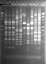 Thumbnail of rep-PCR fingerprint patterns of patient and household isolates, New York, New York, USA, 2001-2011. Lane 1, 100-bp ladder; lane 2, patient no. 5 Mycobacterium avium isolate AG-P-1; lane 3, patient no. 5 household filter M. avium isolate AG-F-2–0-2; lane 4, patient no. 5 household filter M. avium isolate AG-F-2-I-1; lane 5, patient no. 6 M. abscessus-chelonae complex (MAC-X) isolate GG-P-1; lane 6, patient no. 6 household swab M. chimaera isolate GG-Sw-9–1; lane 7, patient no. 8 M. a