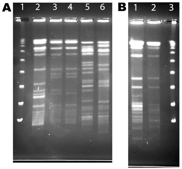 Pulsed field gel electrophoresis (PFGE) of AseI digest patterns of patient and household isolates, New York, New York, USA, 2001–2011. A) Patient and household isolates. Lane 1, λ ladder; lane 2, patient no. 5 Mycobacterium avium isolate AG-P-1; lane 3, patient no. 5 household filter M. avium isolate AG-F-2–0-2; lane 4, patient no. 5 household filter M. avium isolate AG-F-2-I-1(environmental isolates in lanes 3 and 4 are indistinguishable; patient isolate in lane 2 considered clonal with 2 envir