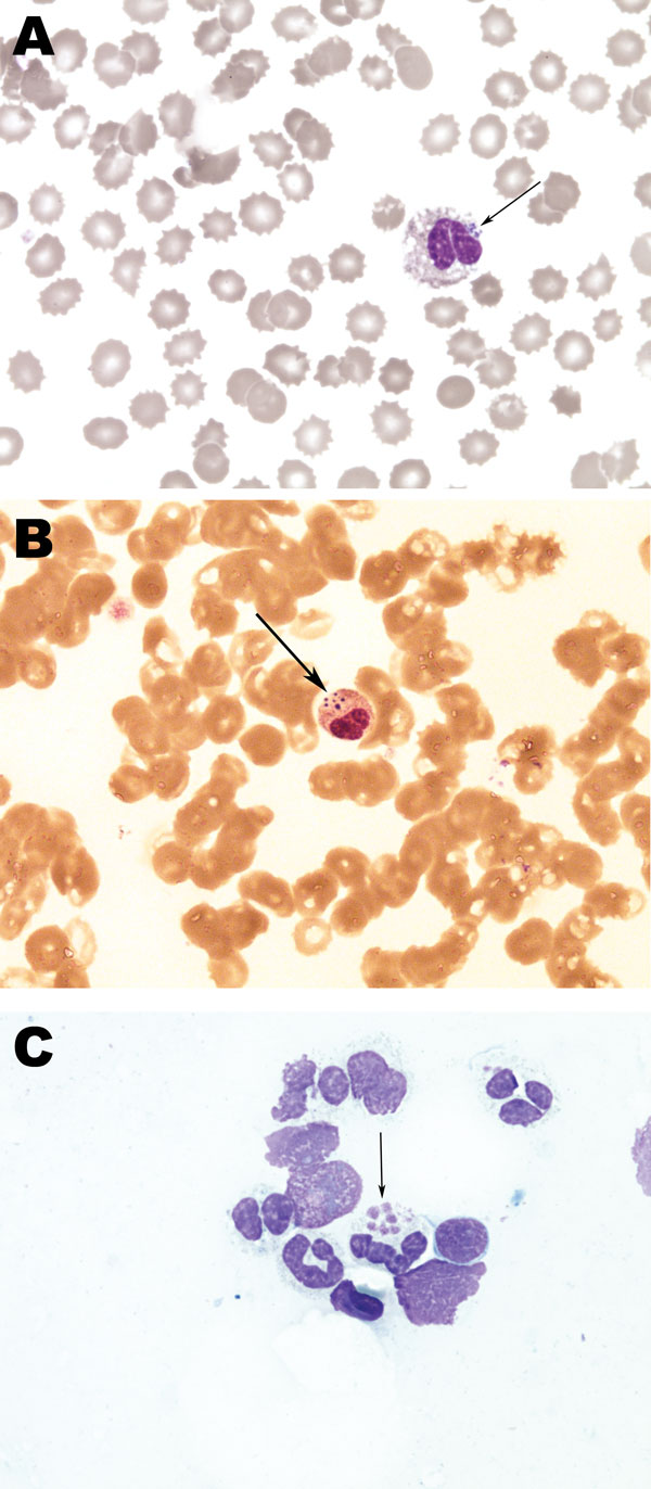 Histopathology slides from 36-year-old woman with human granulocytic anaplasmosis, Slovenia, 2010. Peripheral blood smear (A, B); bone marrow smear (C). Modified Giemsa staining, original magnification ×1,000. Morulae (clusters of Anaplasma phagocytophilum in granulocytic leukocytes) are indicated by arrows. In Europe, morulae have been reported in only 1 patient (6), but they are a relatively common observation in the United States, associated predominately with severe cases of human granulocyt