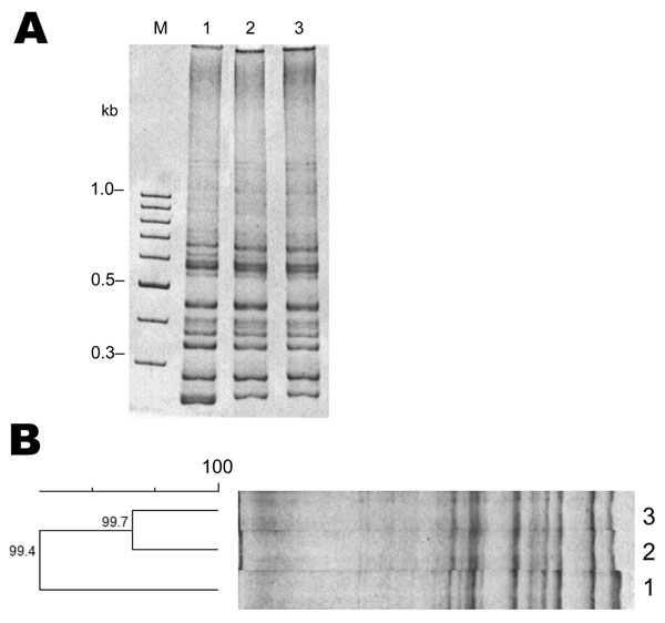 Results of PCR ribotyping of Clostridium difficile 027 strains from Chile. M indicates the 100-bp DNA ladder; lane 2, R20291; lane 2, PUC47; lane 3, PUC51. A) PCR ribotyping of C. difficile isolates. PCR results show that that the band pattern of the ribosomal intergenic regions of strains PUC47 and PUC51 are similar to those of the reference (epidemic) strain R20291. B) Cluster analysis of strains PUC47, PUC51, and the epidemic strain 027 R20291 shows >99% similarity and that they belong to