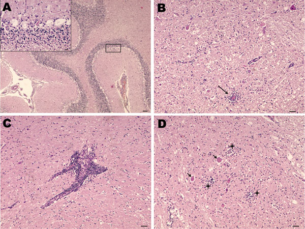Nonsuppurative encephalitis in goat affected by louping ill. A) Cerebellum with necrosis of Purkinje cells. Hematoxylin and eosin (H&E) stain; scale bar = 100 µm. Inset: necrosis of Purkinje cells. H&E stain; scale bar = 20 µm. B) Midbrain. Area of neurophagia (arrow) surrounded by microglial cells. Necrosis of neurons can be also seen. H&E stain; scale bar = 50 µm. C) Lymphoid perivascular cuff in midbrain. H&E stain; scale bar = 50 µm. D) Spinal cord, gray matter. Focal microgl