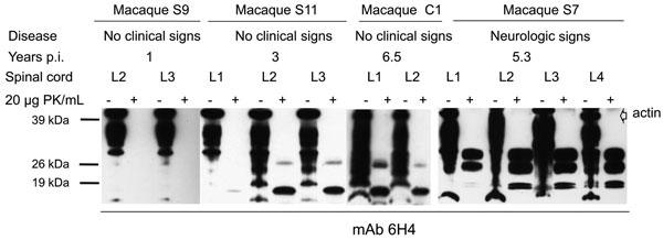 Western blot analysis of bovine spongiform encephalopathy proteinease-resistant prion protein (PrPres) (lumbar spinal cord segments) in preclinical and clinically ill macaques. An atypical PrPres pattern was detectable in macaques euthanized during incubation from 3 years p.i. (macaque S11) to 6.5 years p.i. (macaque C1). All samples were co-stained with an anti-actin-antiserum. p.i., postinoculation; PK, proteinase K; mAb, monoclonal antibody.