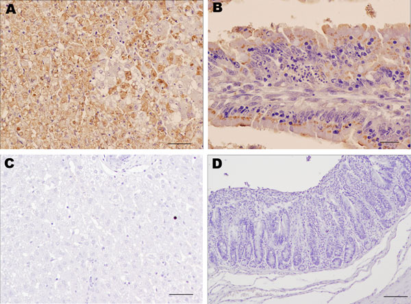 Results of immunohistochemical staining using monoclonal antibody 6G2 and the ABC complex technique of liver and intestine samples from young rabbits infected with rabbit hemorrhagic disease virus (RHDV) isolate RHDV-N11 and control rabbits. A) Liver of RHDV-N11–infected rabbit. Hepatocytes show intense 6G2-specific immunolabeling. Scale bar = 50 µm. B) Intestinal villi in small intestine of RHDV-N11–infected rabbit. Areas of focal necrosis and epithelial cells show strong immunolabeling. Scale