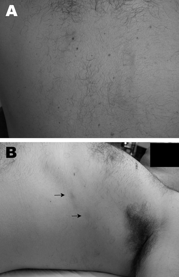 Gnathostomiasis in a 37-year-old man, Brazil. A) Evanescent winding, linear, reddish lesions on the back in 2005. B) Deep migratory reddish nodules (arrows) on the lateral thorax, occurring in 2009 after treatment with albendazol for helmintic prophylaxis.