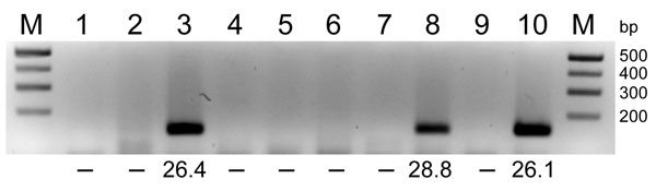 RNA extracted from pools of Culicoides obsoletus group midges was tested in 1-step reverse transcription quantitative PCRs (RT-qPCRs) for the Schmallenberg virus L segment, and the products were analyzed by agarose gel electrophoresis. Lanes 1–8, C. obsoletus group midge pools 1–8; lanes 9–10; negative and positive controls, respectively. Numbers below lanes are cycle threshold values from RT-qPCRs; –, no value. M, size marker. Amplicons (145 bp) from positive pools were extracted and sequenced.