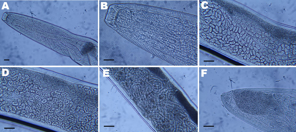 Light micrographs of Thelazia callipaeda showing A) posterior and B) anterior portion with cephalic end and buccal capsule; C) anterior portion containing embryonated eggs; D) middle portion containing rounded first-stage larvae; E) posterior portion containing first-stage larvae; F) caudal end. Scale bars = 25 µm.