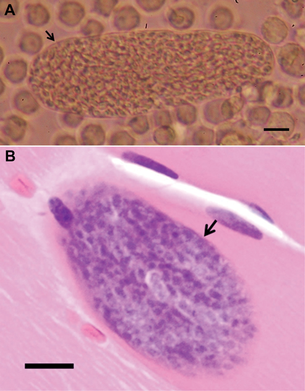 A) Sarcocysts isolated from persons infected with Sacrocystis nesbetti, Pangkor Island, Malaysia, 2012. Intact human sarcocyst (length 190 µm) with thin cyst wall (arrow) from homogenized temporalis tissue inoculated into a U937 monocytic cell culture (original magnification ×200, scale bar = 20 µm). B) Intramuscular sarcocyst enclosed by a thin smooth cyst wall (arrow) without any protrusions. Maximum cyst wall thickness is ≈0.5 µm (hematoxylin and eosin stained, original magnification ×40, sca