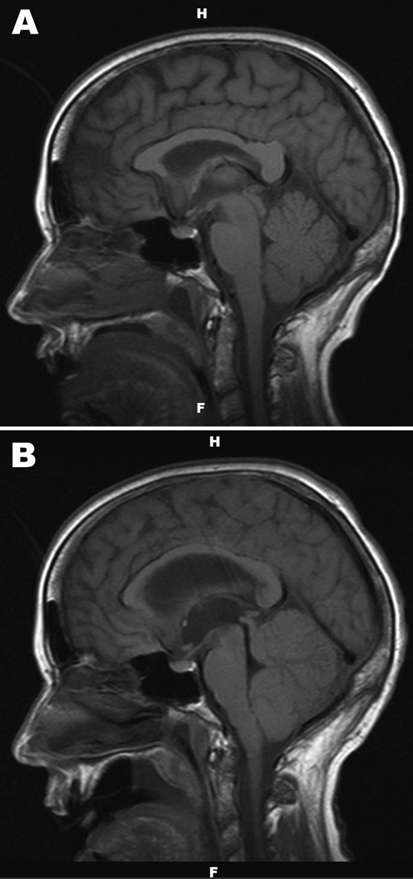 A) Noncontrast, sagittal T1-weighted magnetic resonance image of the brain of a 67-year-old woman with suspected Powassan virus encephalitis, obtained 4 days after admission. Image is notable for nonspecific signal changes within the thalami, midbrain, cerebellar vermis, and both cerebellar hemispheres. B) Noncontrast, sagittal T1-weighted magnetic resonance image of the brain obtained 8 days after patient's admission. Changes include marked interval progression of signal abnormality involving t