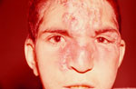 Thumbnail of Disfiguring infiltration of the nose, glabella, and forehead with clustered nodules in left interciliary region of boy with endemic syphilis, Iran, 2010.