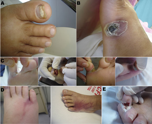 Primary skin lesions in patients with invasive fusariosis in the hematology unit at University Hospital, Federal University of Rio de Janeiro, Rio de Janeiro, Brazil, 2000–2010. A) Onychomycosis; B) ulcer; C) intertrigus; D) intertrigus evolving to lymphangitis before dissemination. (First image in D is the same patient as the first image in C; second image in D is the same patient as the fourth image in C.) E) Necrosis in a lesion of intertrigus (evolution of the lesion shown in the third image
