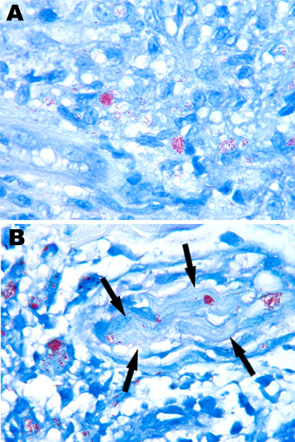 Acid-fast organisms from biopsy specimens of a man with leprosy, United States. Fite-stained sections show numerous acid-fast bacilli in the initial skin biopsy (A) and in the biopsy taken at relapse, 6 years after completion of treatment (B). Both specimens demonstrate the clumps of Mycobacterium leprae referred to as globi. In panel B, bacilli can be seen within a cutaneous nerve (arrows), a finding that is pathognomonic of M. leprae. Original magnification ×1,000.