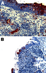 Thumbnail of Nipah virus (NiV) antigen in acutely inflamed tonsillar tissue and overlying epithelium (A) and nasopharyngeal epithelium (B) in 2 ferrets infected with NiV-Bangladesh. Rabbit α-NiV N protein antiserum. Original magnification ×200.