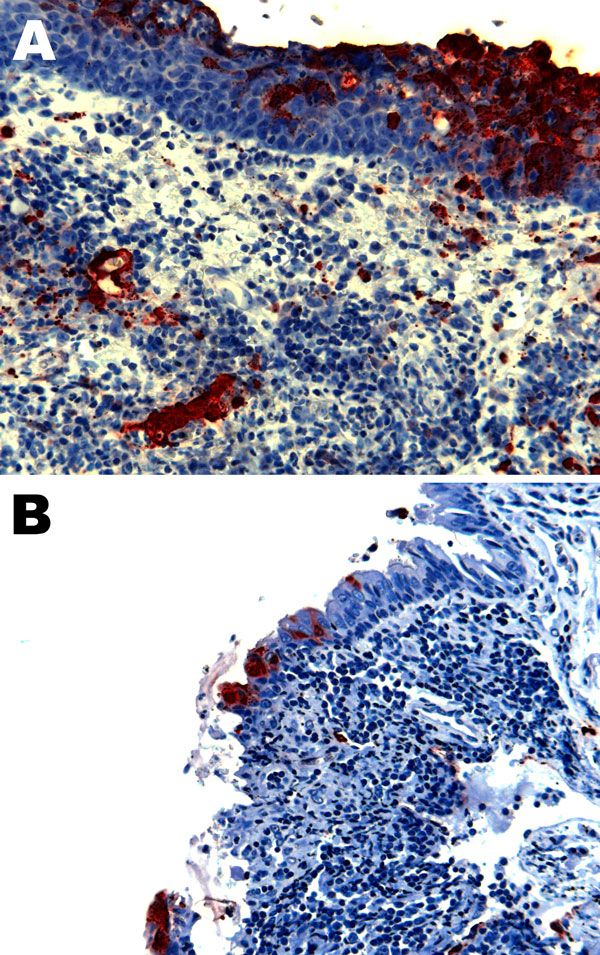 Nipah virus (NiV) antigen in acutely inflamed tonsillar tissue and overlying epithelium (A) and nasopharyngeal epithelium (B) in 2 ferrets infected with NiV-Bangladesh. Rabbit α-NiV N protein antiserum. Original magnification ×200.