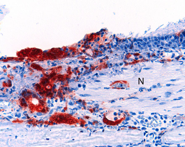 Olfactory epithelium of a ferret infected with Nipah virus (NiV)-Bangladesh. NiV antigen was observed in close association with submucosal nerve fibers (N). Rabbit α-NiV N protein antiserum. Original magnification ×200.